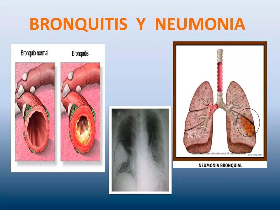 Cómo saber si tengo Bronquitis o Neumonía