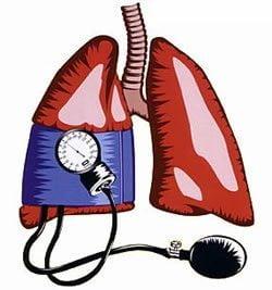 Las alteraciones genéticas influyen en el desarrollo de la hipertensión pulmonar arterial