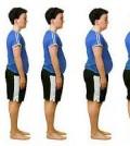 obesidad 2
