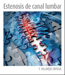 La estenosis del canal lumbar es la causa quirúrgica más frecuente en mayores de 65 años