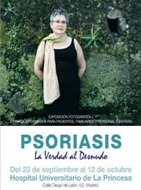 """Se inaugura la exposición de pacientes con psoriasis """"La Verdad al Desnudo """""""