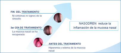 NASODREN®, alivio sintomático de la sinusitis