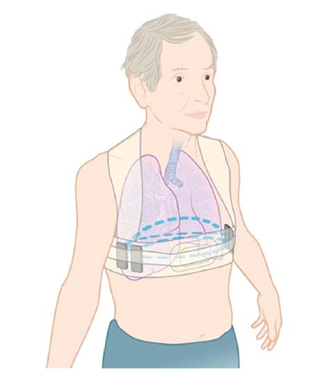 Un chaleco inteligente permite la telemonitorización del paciente con insuficiencia cardíaca
