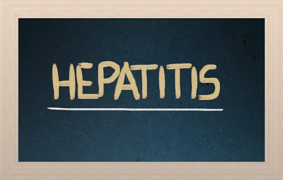 Expertos en hepatitis C analizan los retos en el tratamiento de pacientes coinfectados con el VHC Y VIH