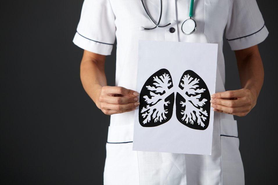 La fibrosis pulmonar idiopática puede tardar en detectarse entre 2 y 4 años