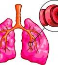 asma pulmon pulmones