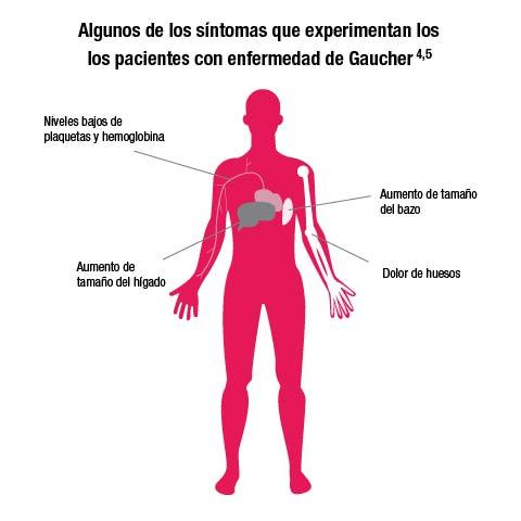 Enfermedad de Gaucher: el principal reto para los hematólogos es el diagnóstico precoz