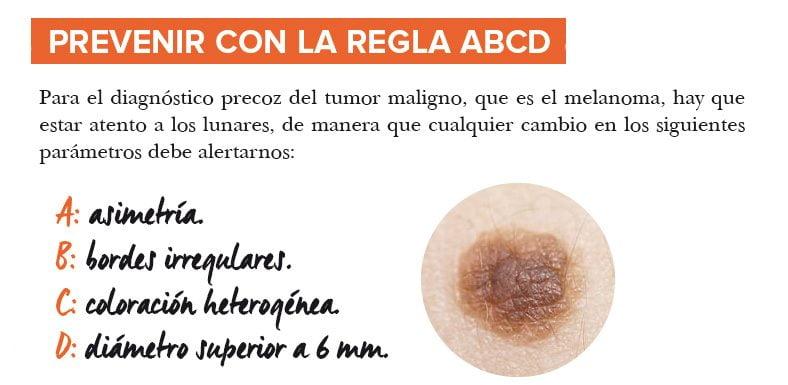 Guerra al melanoma: cambia tus hábitos