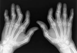 Un nuevo cuestionario facilita a los dermatólogos la detección de artritis psoriásica entre pacientes de psoriasis