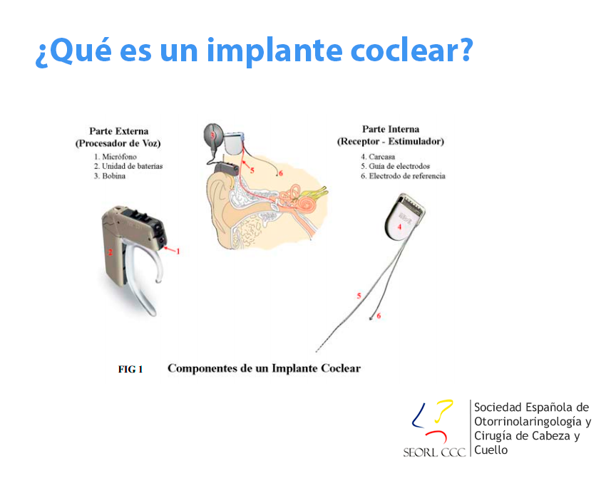 Los implantes cocleares permiten mejorar las relaciones laborales