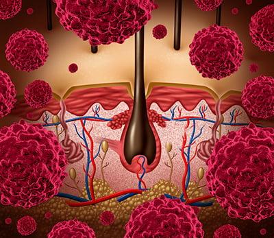 El cáncer cutáneo, uno de los principales motivos de consulta al dermatólogo