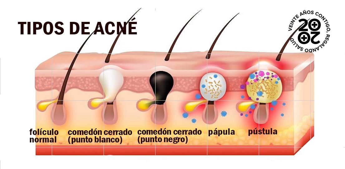 SOS acné, el problema de la piel adolescente