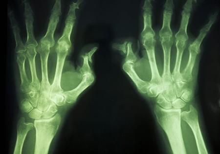 Jornada de Actualización en Artritis Idiopática Juvenil