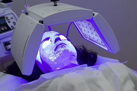 Terapia biofotónica: tecnología innovadora para tratar el acné