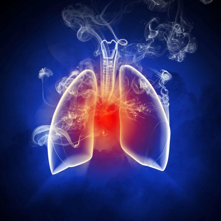 Tratamiento del cáncer de pulmónTratamiento del cáncer de pulmón