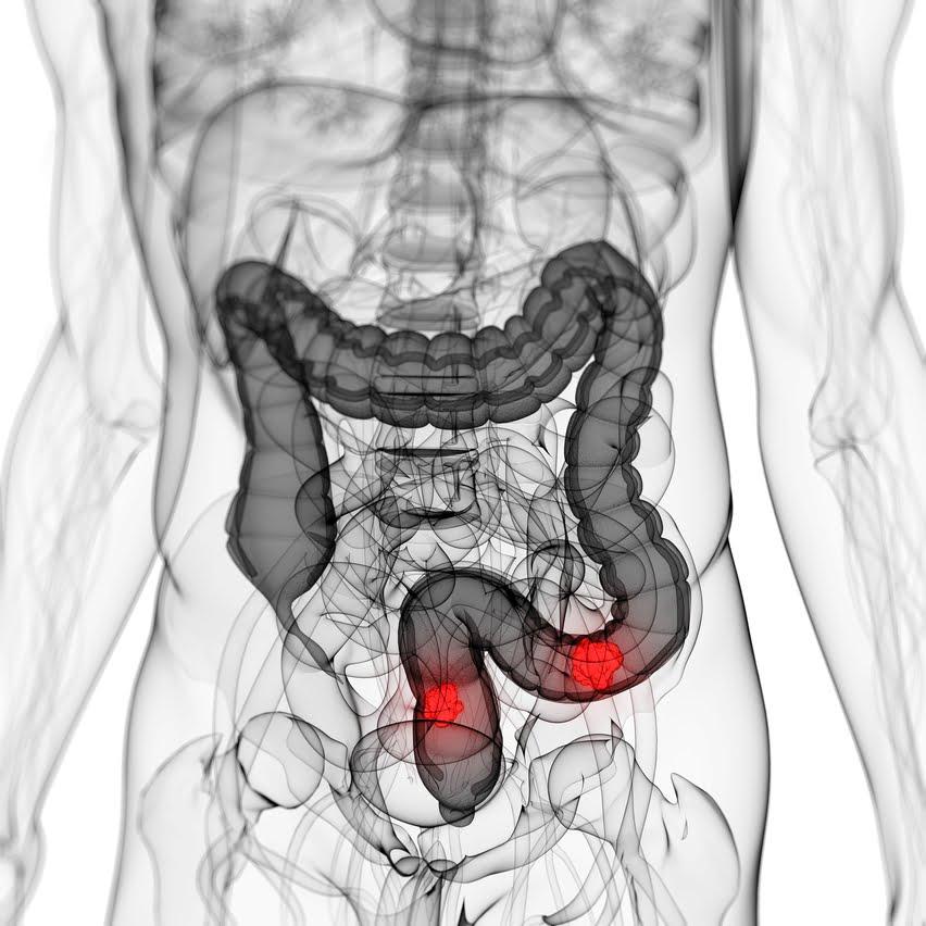 Estrategias contra el cáncer de colon