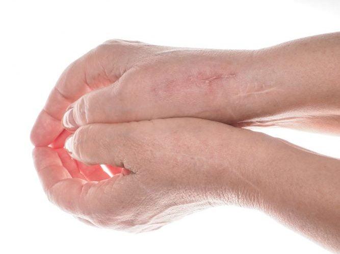 El 60% de los pacientes quirúrgicos no está satisfecho con su cicatriz