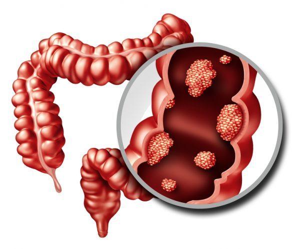 Sangre en las heces y el riesgo de padecer cáncer colorrectal