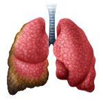 Cáncer de pulmón tratamientos