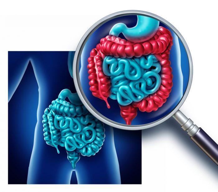 Un nuevo algoritmo ayudará a diagnosticar el síndrome de intestino irritable