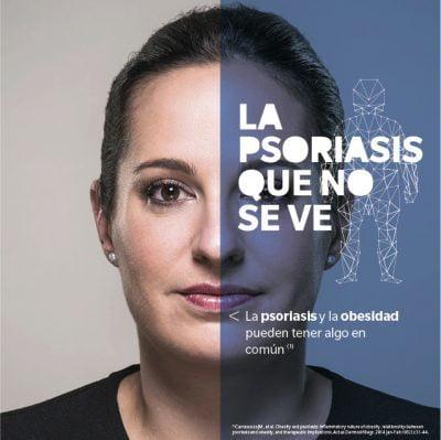 Una campaña pone de relieve las enfermedades asociadas a la psoriasis