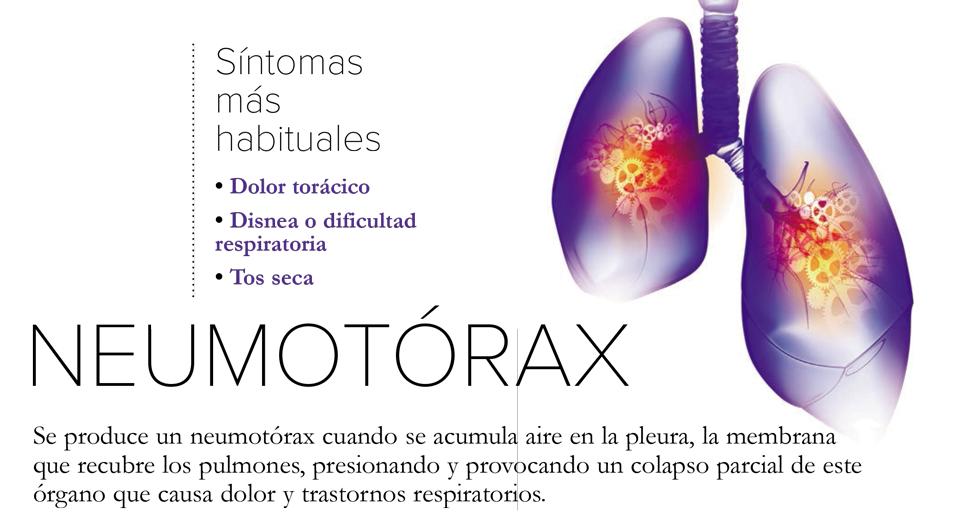 Neumotórax: el candidato ideal