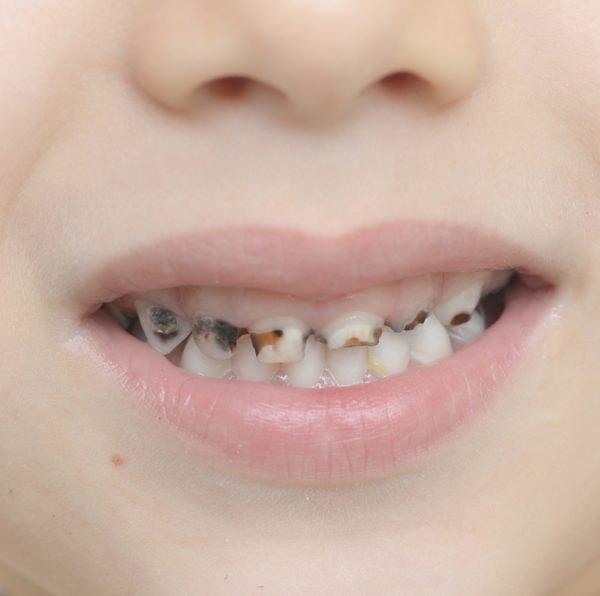 Caries en los dientes de leche, ¿deben tratarse?
