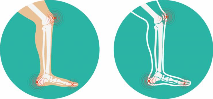 lesión musculo-esquelética