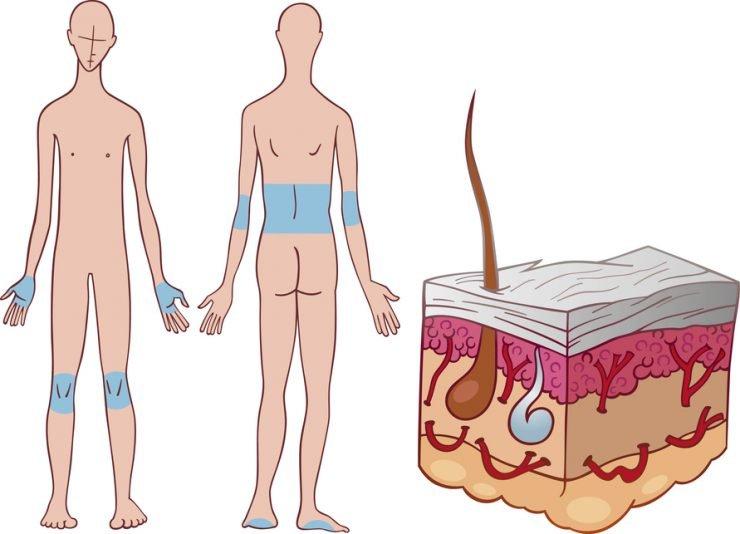 pacientes de psoriasis
