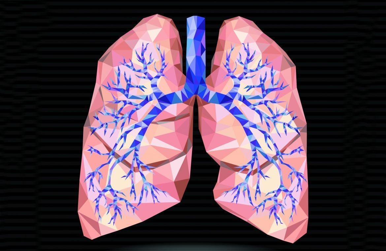 La fisioterapia respiratoria mejora el control de lasbronquiectasias