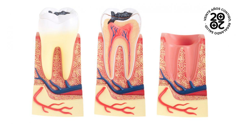 5 problemas dentales muy comunes y sus soluciones