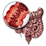 pacientes con enfermedad inflamatoria intestinal