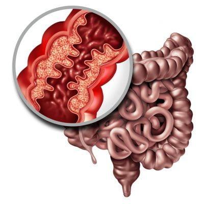 El 17% de los pacientes con enfermedad inflamatoria intestinal tarda más de 5 años en ser diagnosticado