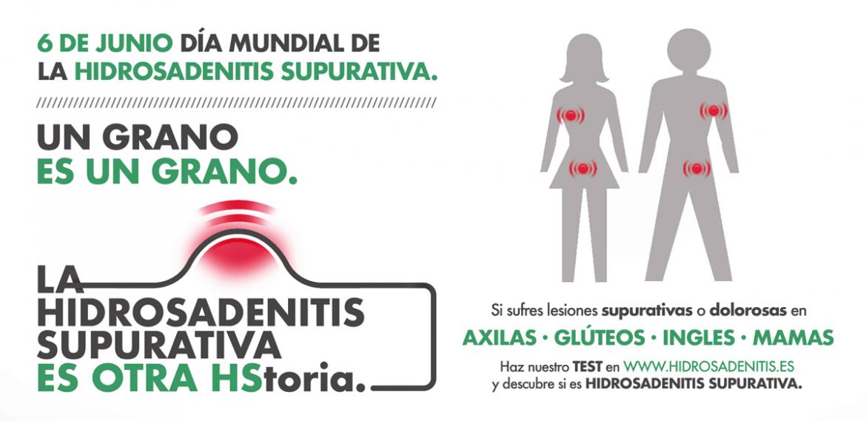 Un test te ayuda a detectar si padeces hidradenitis supurativa