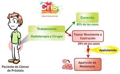 Traramiento cáncer de próstata