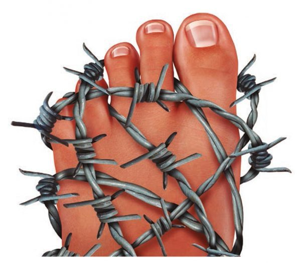 Metatarsalgia: dolor en la zona anterior del pie