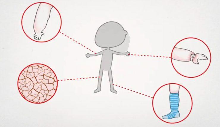 como hacer frente al linfedema
