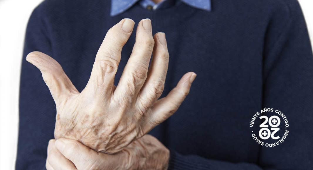 Depresión, obesidad y enfermedad cardiovascular se asocian a la artritis reumatoide