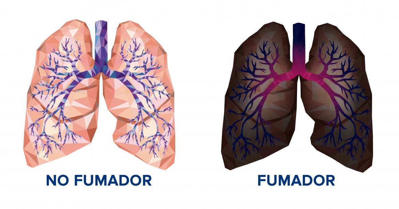 Los oncólogos piden más recursos para frenar el cáncer de pulmón