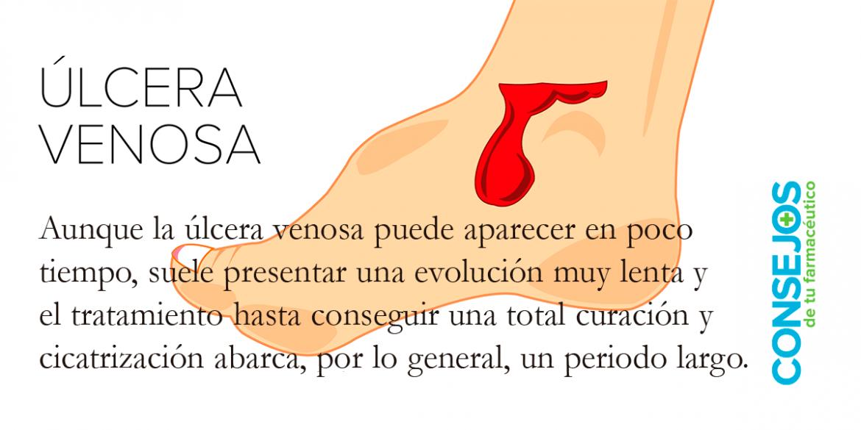 Úlceras venosas o varicosas: todos los cuidados