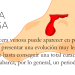 ulceras venosas