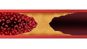 medir el colesterol en casa