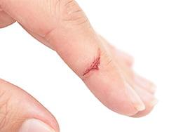 Mala cicatrización de heridas