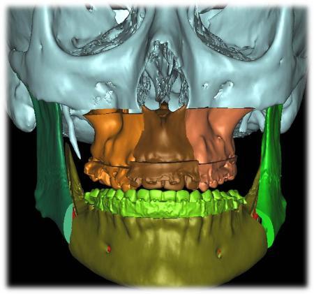 Un programa permite corregir las deformaciones dentofaciales al milímetro