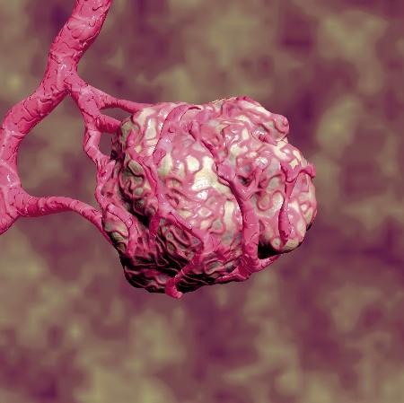 La terapia antiangiogénica podría rescatar a pacientes con cáncer colorrectal descartados para la cirugía por tener metástasis hepáticas