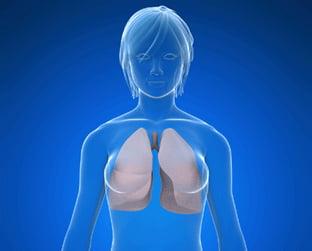 La Homeopatía puede aliviar los síntomas del Asma