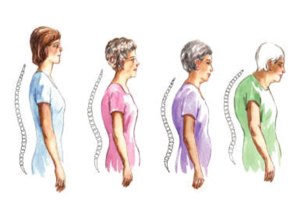 La prevalencia de osteoporosis aumenta progresivamente con la edad