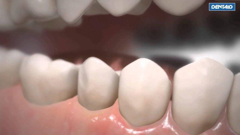 Dentaid presenta su nueva técnica technology nanorepair de blanqueamiento dental no abrasiva