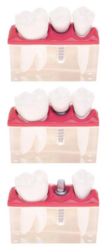 Mejorar la función y favorecer una estética natural, retos superados en implantes dentales