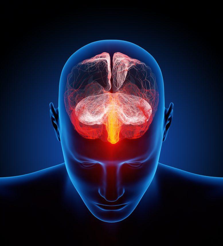 Casi una cuarta parte de los pacientes con epilepsia se considera discriminado